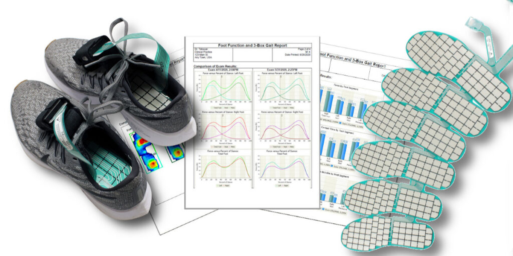 Tekscan F-Scan64; compact and affordable in-shoe pressure measurement